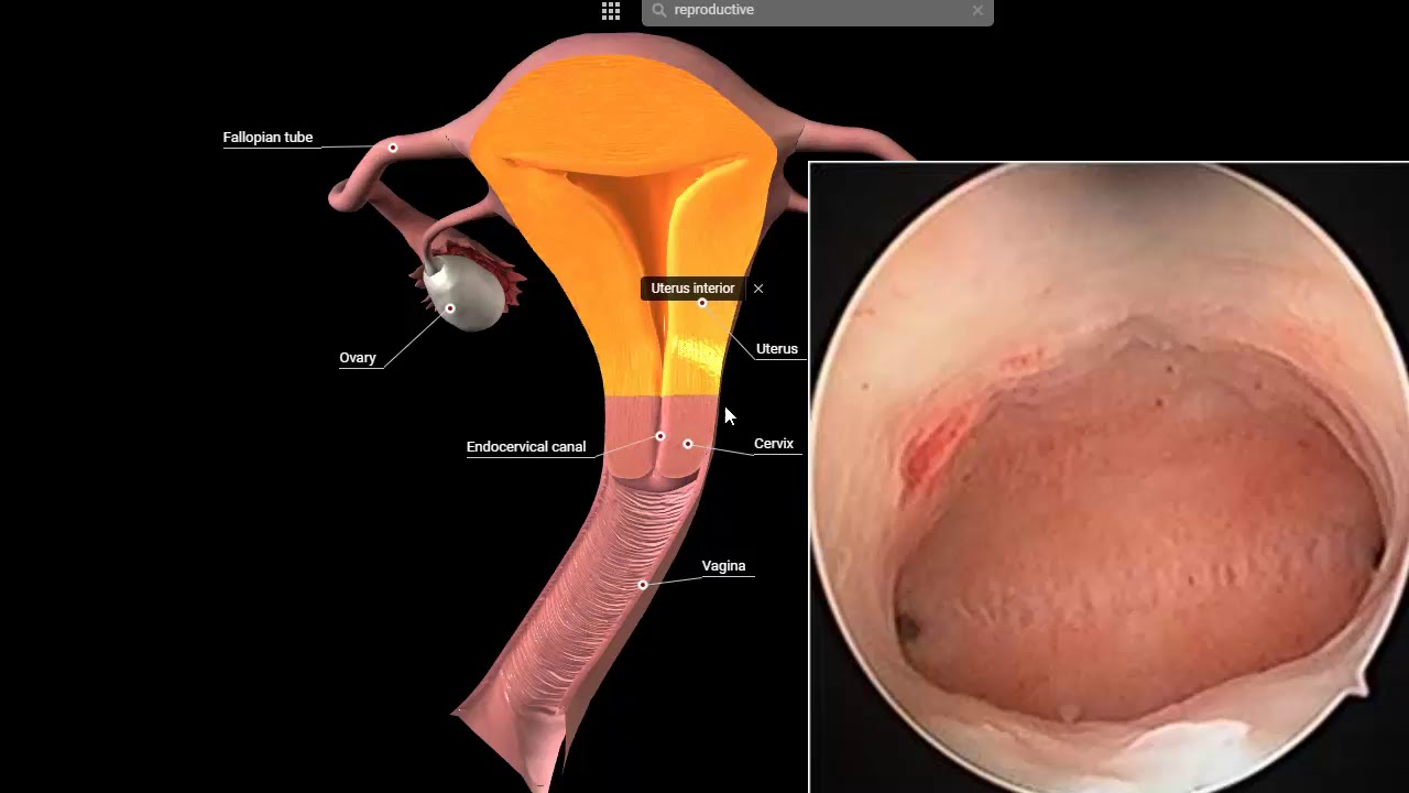 The ampulla is the third portion of the fallopian tube It is an intermediate dilated portion which curves over the ovary It is the most common site of human