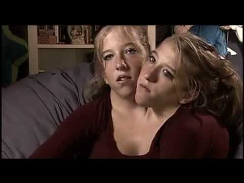 Siamesische Zwillinge | 2 Arme - 2 Beine - 2 Köpfe - 1 Körperиз YouTube · Длительность: 45 мин29 с