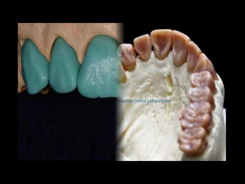 Металлокерамическая коронка на зуб: стоимость работы и