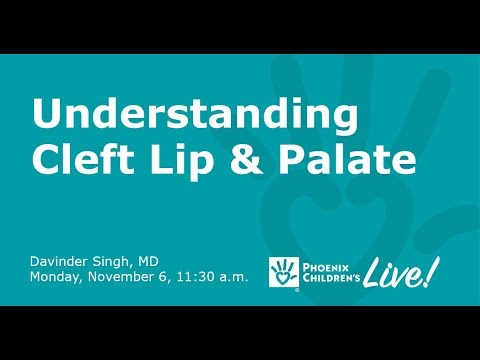 Cleft Lip and Palate Q&A