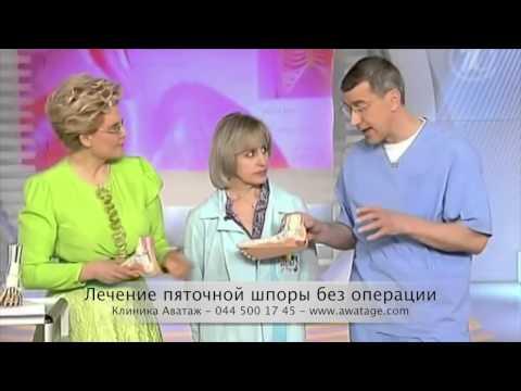 Пяточная шпора главные причины, симптомы, последствия