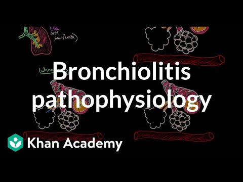 Bronchiolitis pathophysiology