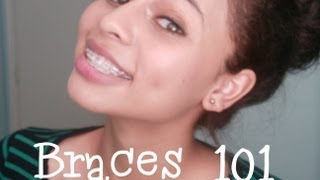 Braces 101: Types,Cost,& How to get them CHEAP!
