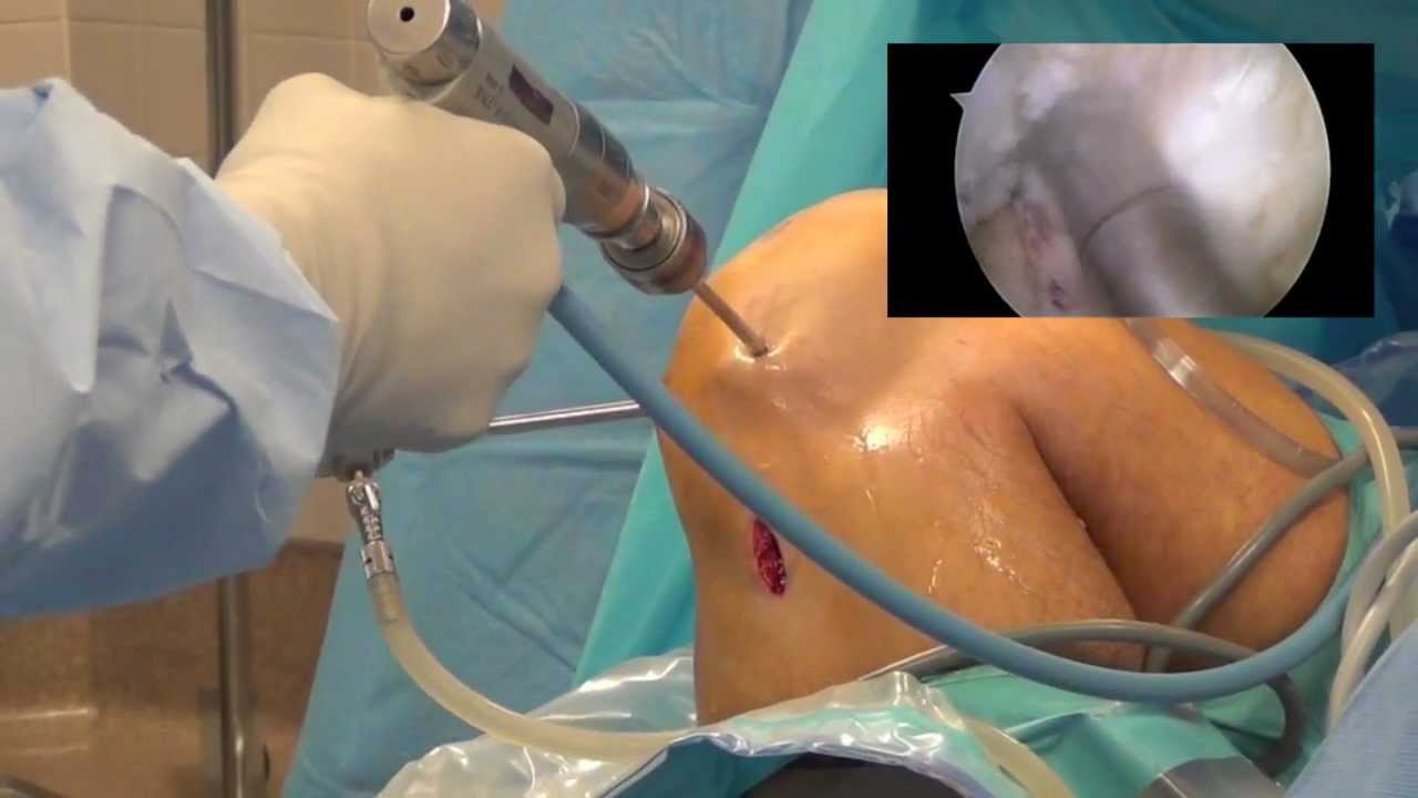 What is the Best Graft Choice for ACL Reconstruction? - Mike