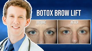 Medical Minute: What is a Botox Brow Lift?