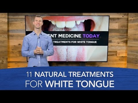 11 Natural Treatments for White Tongue