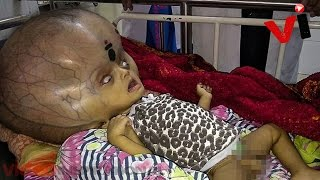 Baby With 'World's Largest Head' Has Life Saving Surgery To Remove 8 Pounds Of Fluids From Skull
