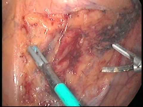 Laparoscopic excision of a giant pelvic paragangli...