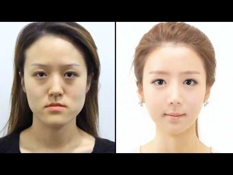 Korean Twins Unrecognizable After Plastic Surgery Youtube
