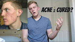 Done with Doxycycline, Starting Clindamycin | Acne Update