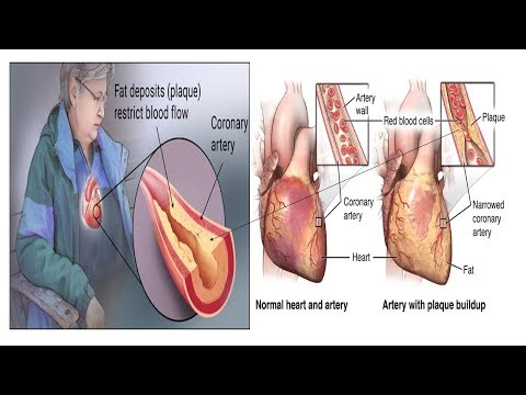 Ischemic Heart Disease Or Coronary Artery Disease Symptoms|cause Treatments And Prevention