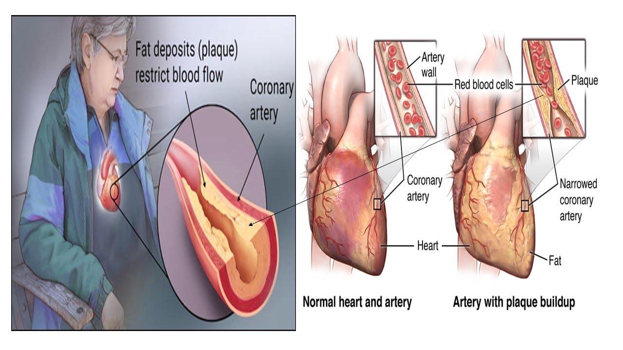 sex an coronary desease