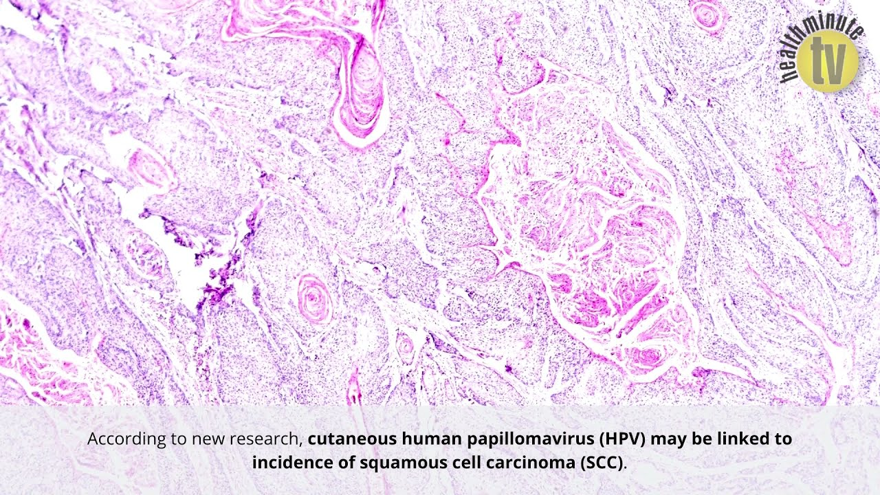VIDEO: Cutaneous human papillomavirus may predict squamous cell carcinoma, study shows