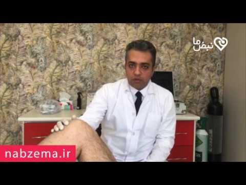 آناتومی زانو و انواع درد زانو thumbnail