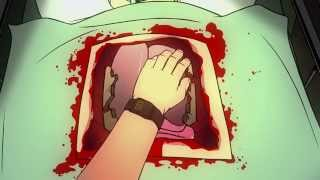 Mondo Guest Pass: Surgeon Simulator Animated - Heart Transplant
