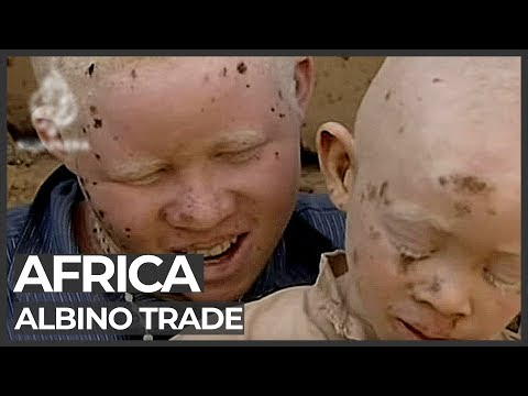 Albino Body Organs Sold For Witchcraft