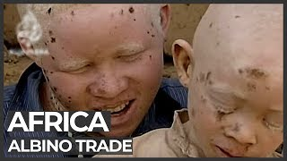 Albino body organs sold for witchcraft | Al Jazeera English thumbnail