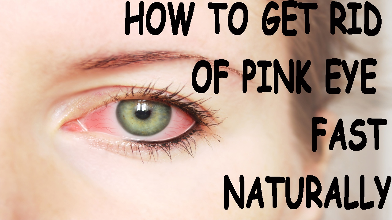 How To Get Rid Of Pink Eye Naturally