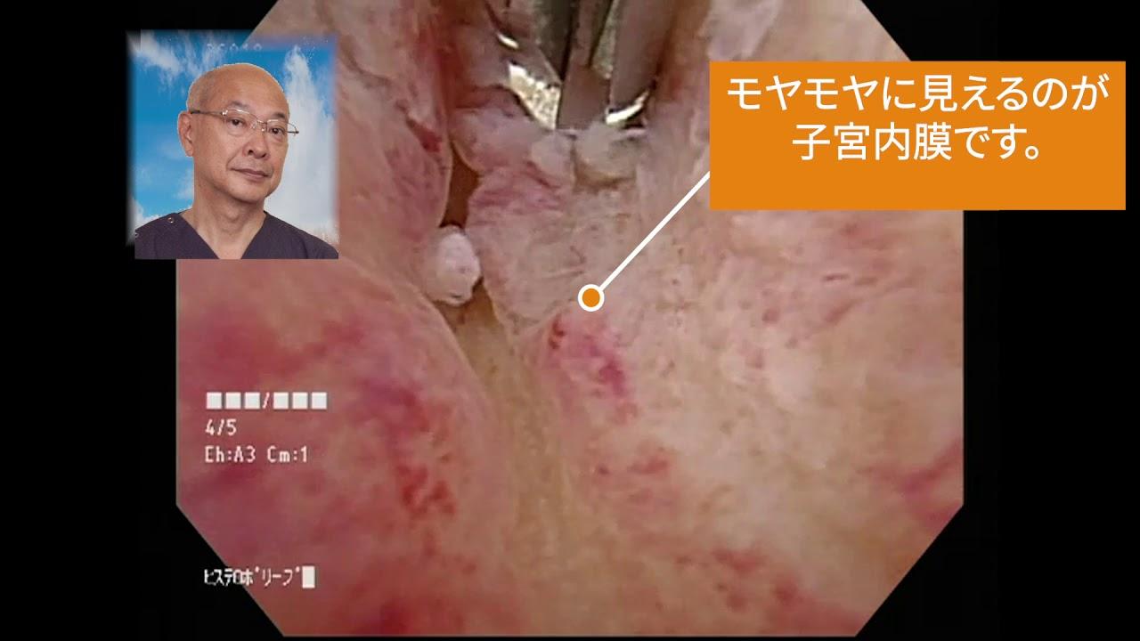 内 費用 ポリープ 手術 子宮 膜