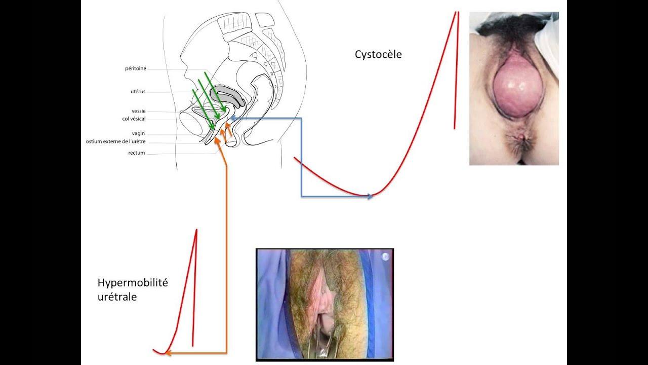 C'est quoi un prolapsus, une descente d'organe? - YouTube