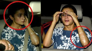 SHOCKING! Alia Suffers Burns On Her Face & Hands