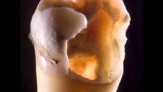 Epoca del empirismo en endodoncia