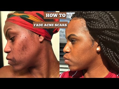 How to fade acne and scars | Hyperpigmentation ft. Ambi fade cream