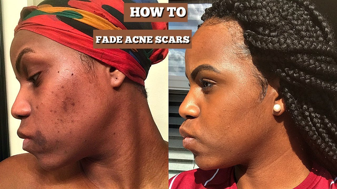 How To Fade Acne And Scars Hyperpigmentation Ft Ambi Fade Cream
