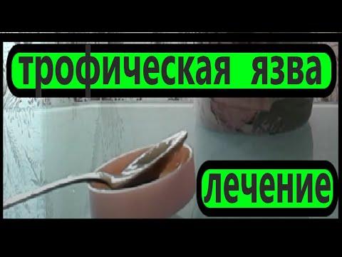 УНИКАЛЬНЫЙ МЕТОД - ТРОФИЧЕСКАЯ ЯЗВА  - ЭФФЕКТИВНОЕ ЛЕЧЕНИЕ..