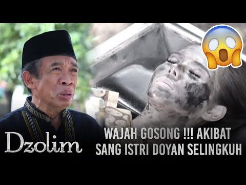 Istri Durhaka Doyan Selingkuh!! Suami Hidup Merana Dan Wajah Rusak - Dzolim Part 1 (11/9)