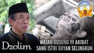 Download Video Istri Durhaka Doyan Selingkuh!! Suami Hidup Merana Dan Wajah Rusak - Dzolim Part 1 (11/9) MP3 3GP MP4