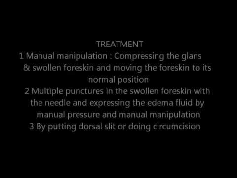 Human penis: part 3. Paraphimosis . 18+ Educational purposes only. (jklakhani) from YouTube · Duration:  2 minutes 25 seconds