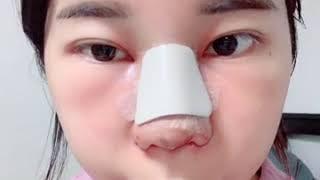 쭈밍의 코 수술 (비중…