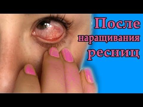 Нарастила ресницы болят глаза