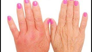 La manos? para ¿Qué en reducir tus puedes hacer hinchazón