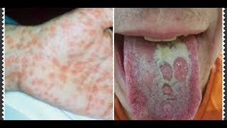 Tak Usah Ke Dokter Kulit!! Cukup Oleskan Ini Gatal gatal & Penyakit Kulit Menahun Hilang Seketika.