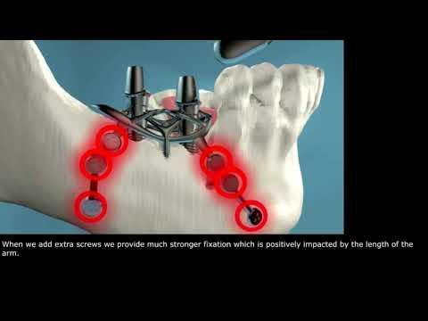 Dental Implant Patent