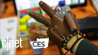 This glove helps paralyzed hands move again