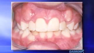 Orthodontie : présentation du système DAMON