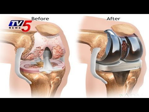 Advanced Techniques For Knee & Total Hip Replacement : TV5 News