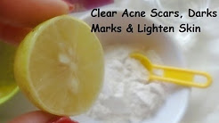 hqdefault - Skin Whitening Acne Scars