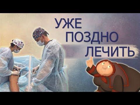 Когда лечить варикоз? Лучший возраст лечения варикоза.