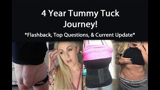 4 Year Tummy Tuck Journey! {Top Questions + Current Update}