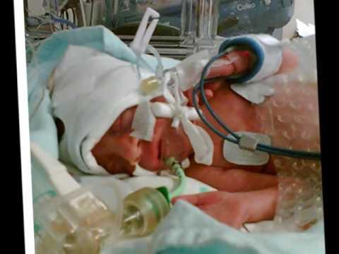 Hypoxic Ishemic Encephalopathy with Neonatal Cooling