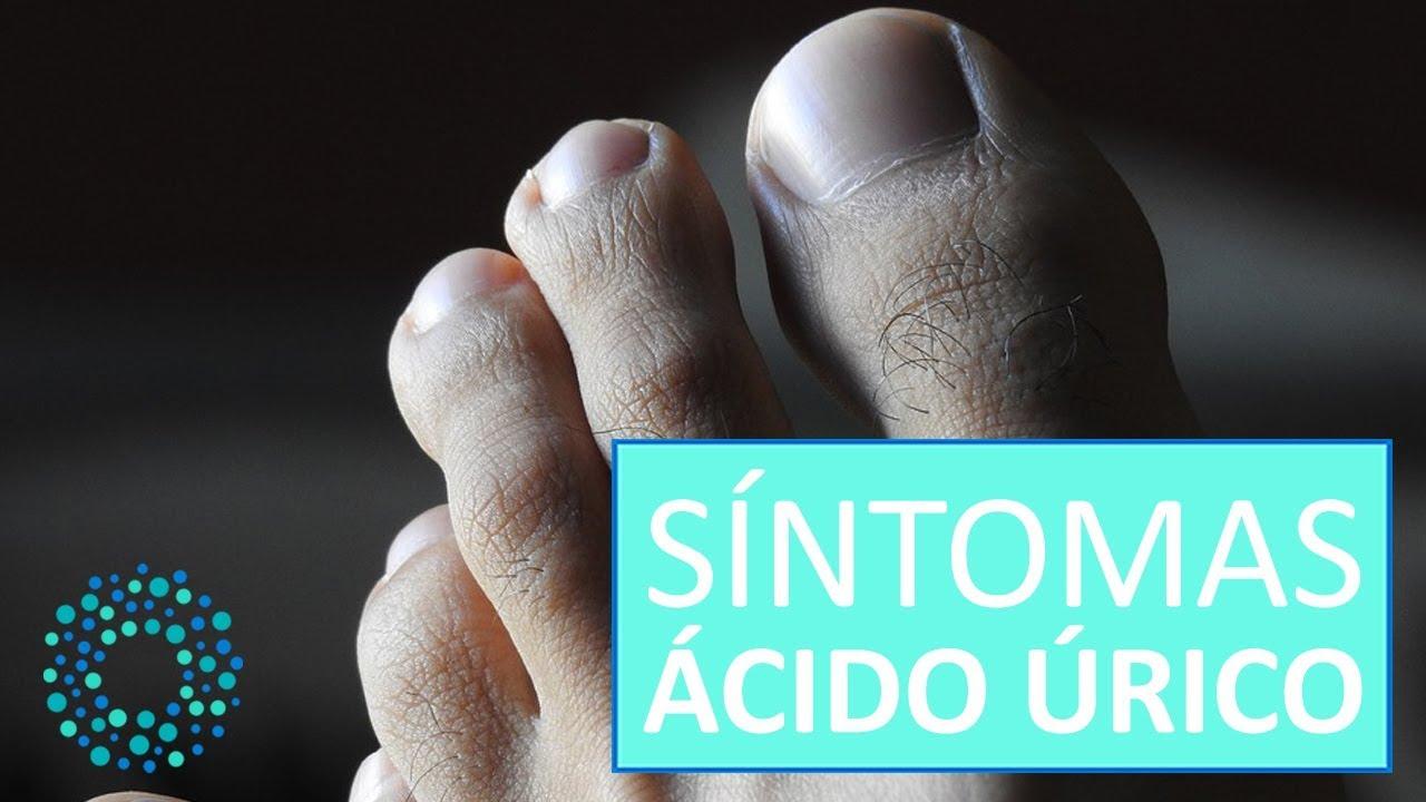 Causas de el acido urico alto