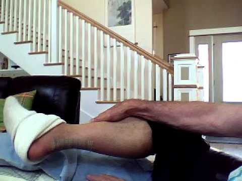achilles tendon rupture recovery weight bearing
