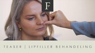 Teaser Lipfiller Behandeling / Filler Cottage