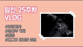 [유리뷰] 임신 25주차 브이로그 (임당검사 | 임산부…