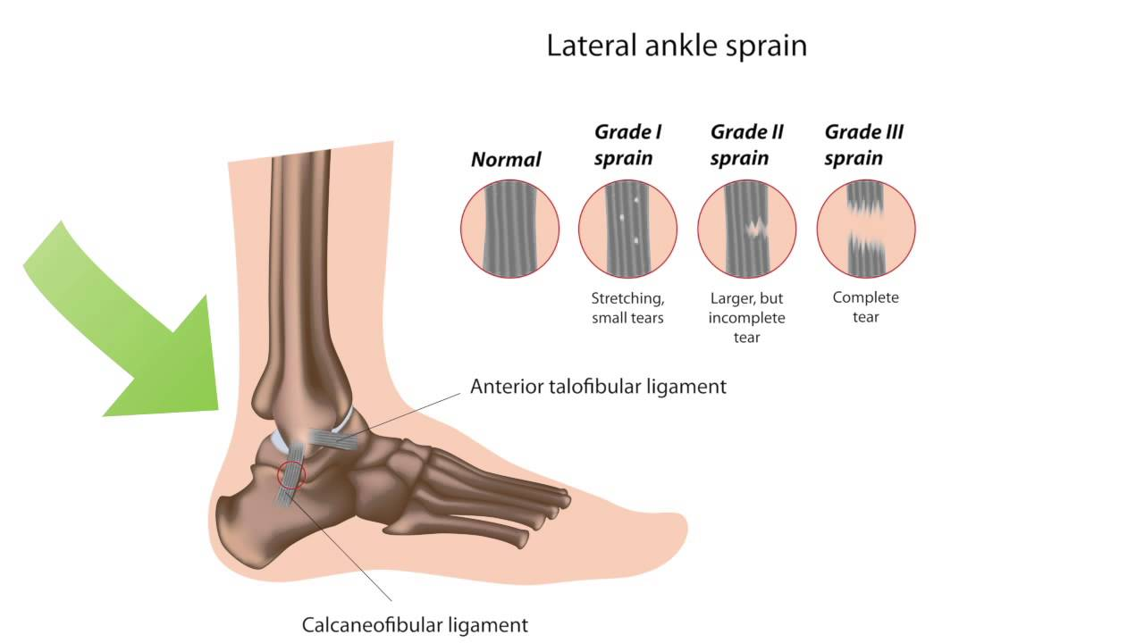 how to tell if you sprained or broke ankle
