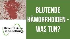 Blutende Hämorrhoiden | Was kann man tun wenn die Hämorrhoiden bluten?